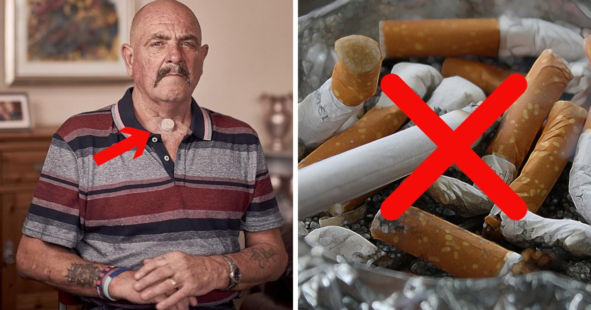 untitled design 22.png?resize=648,365 - Ex-Smokers Warn About Devastating Effects Of Smoking That Destroyed Their Lives
