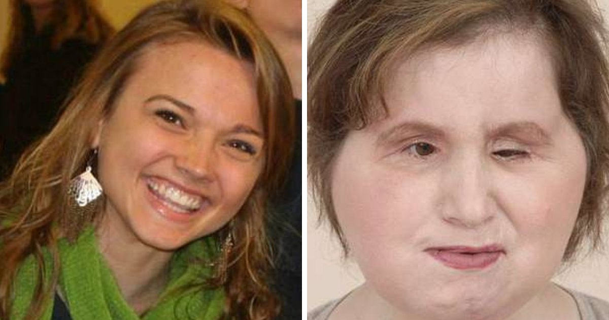 untitled design 75.png?resize=636,358 - 22-Year-Old Girl Undergoes Face Transplant After Failed Suicide Attempt