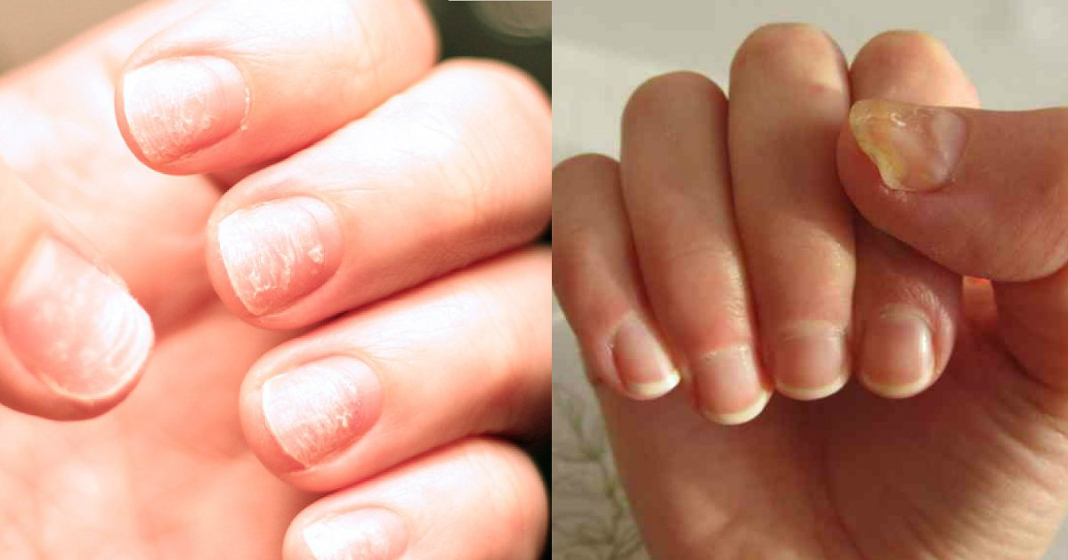 1 72.jpg?resize=412,232 - How Your Fingernails Might Indicate Something Is Wrong With Your Health