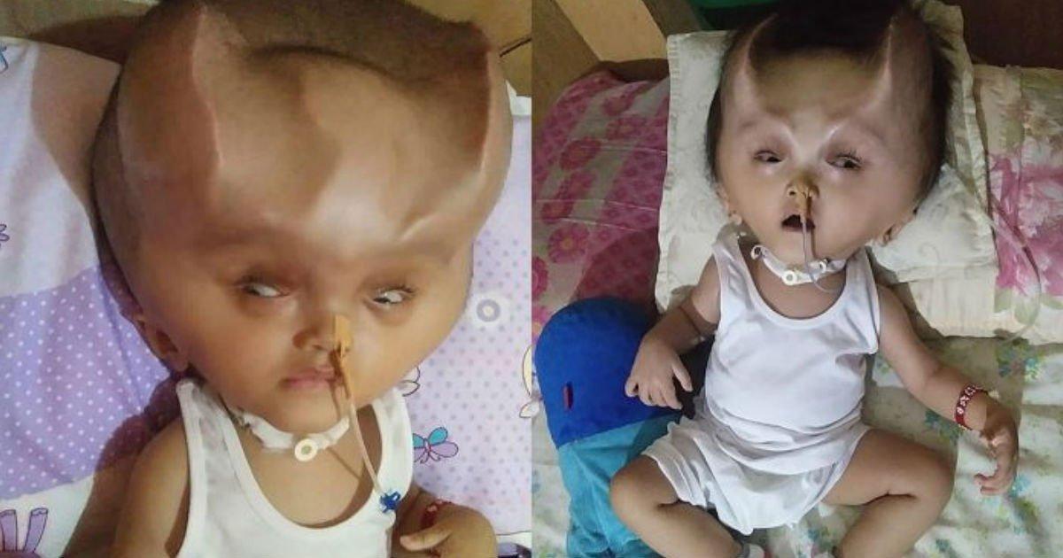 2 198.jpg?resize=1200,630 - 「難病」で頭蓋骨が変形してしまったが、生きたい!と頑張る赤ちゃん