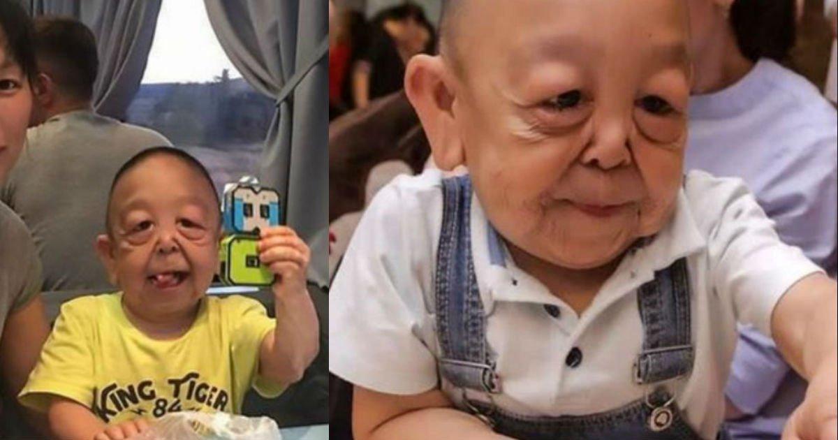 3 191.jpg?resize=412,232 - 「難病」のために、おじいさんの顔で生きていく「6歳の子ども」