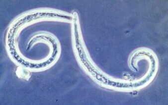 広東住血線虫症에 대한 이미지 검색결과