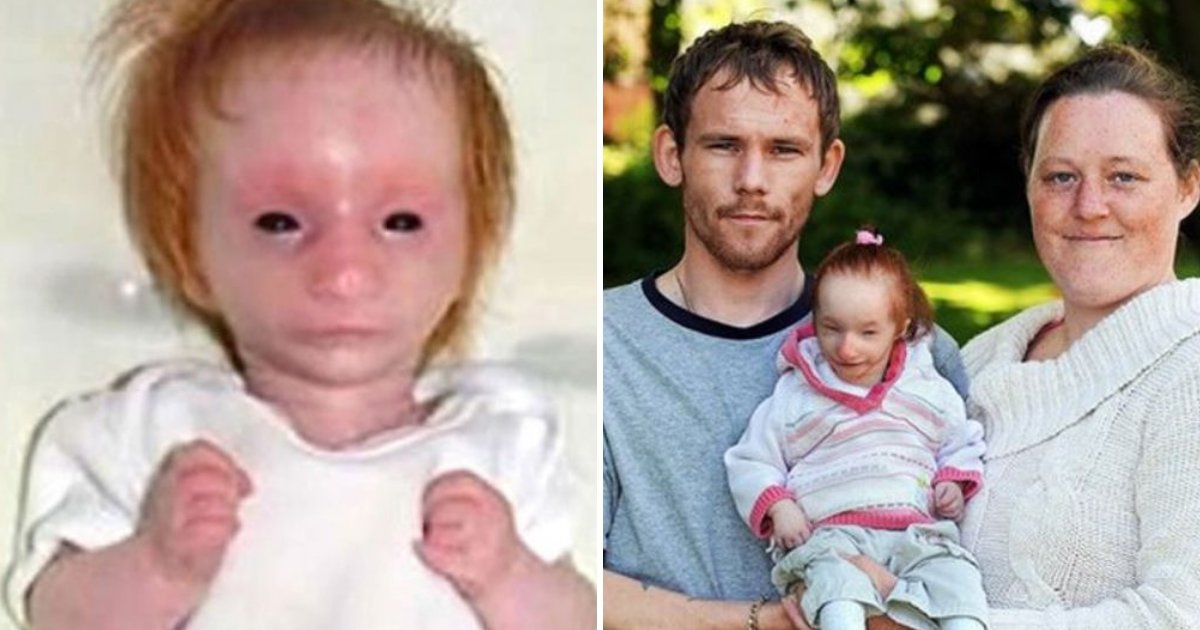 charlotte7.png?resize=412,232 - Doctors Gave 'World's Tiniest Girl' A Death Sentence But She Proves Them All Wrong