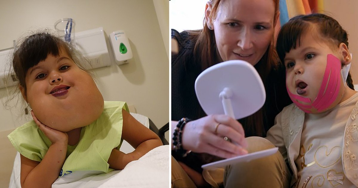 dfdf.jpg?resize=1200,630 - Young Girl Underwent 14-Hour Operation To Have Her Facial Tumor Removed