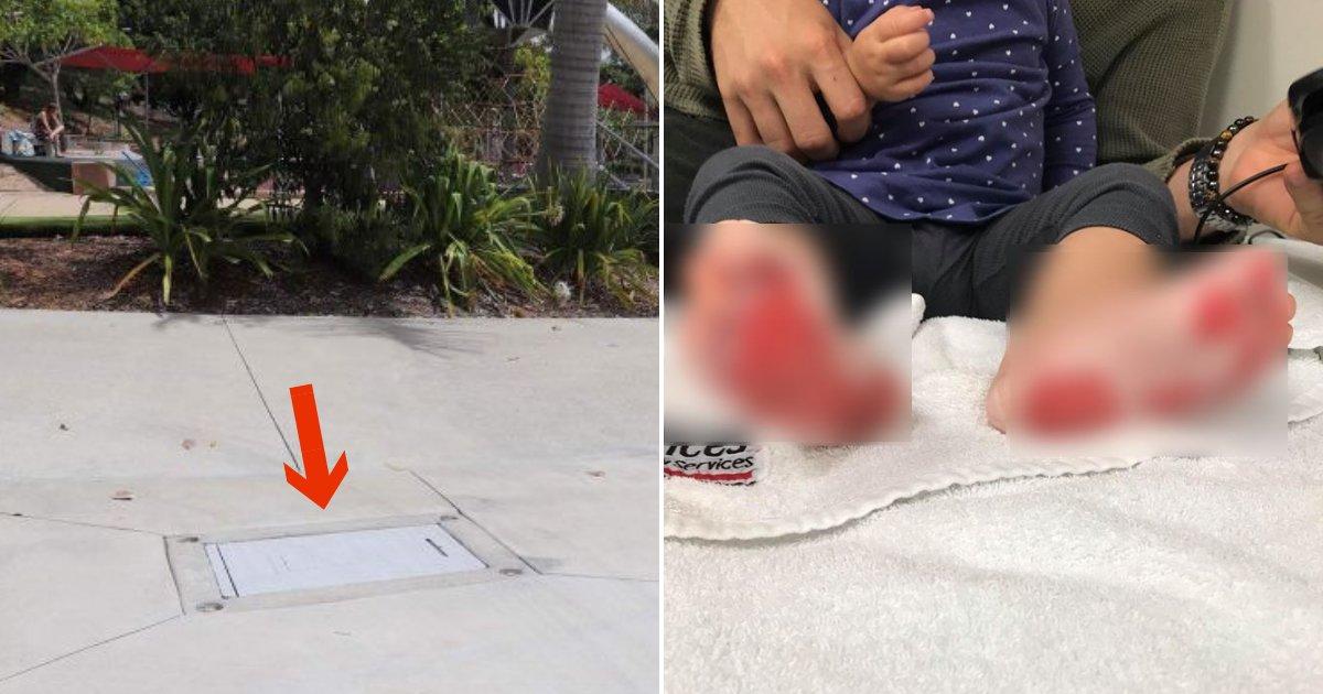 feature.png?resize=412,232 - Un enfant en bas âge souffre d'horribles brûlures après avoir marché sur une grille en métal brûlante dans un parc familial