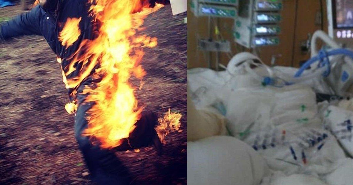 firethemselves.jpg?resize=300,169 - SNSで「いいね!」がほしくて体に自ら火をつけた「全身火傷」少女