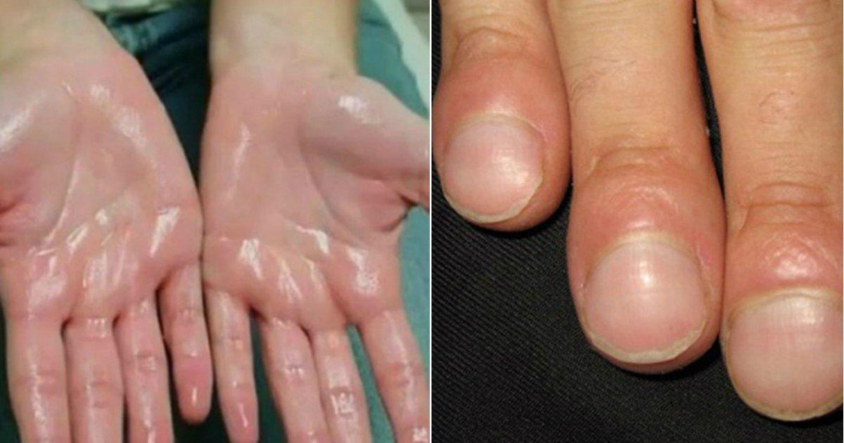 hand signs.jpg?resize=412,232 - 7 signes que vos mains vous révèlent sur votre santé