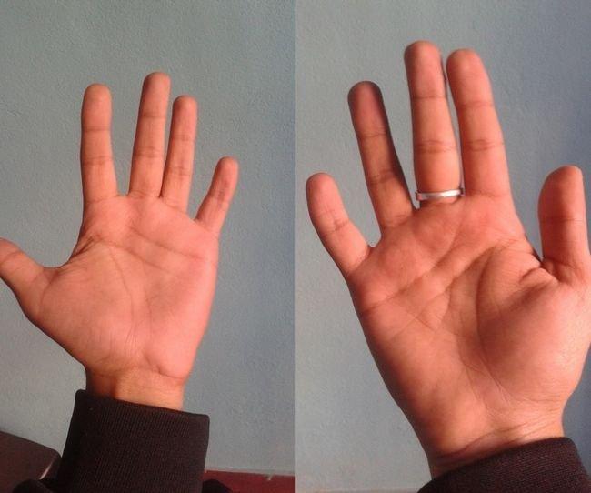 hand.jpg?resize=1200,630 - 20 Pessoas que possuem condições únicas e raras