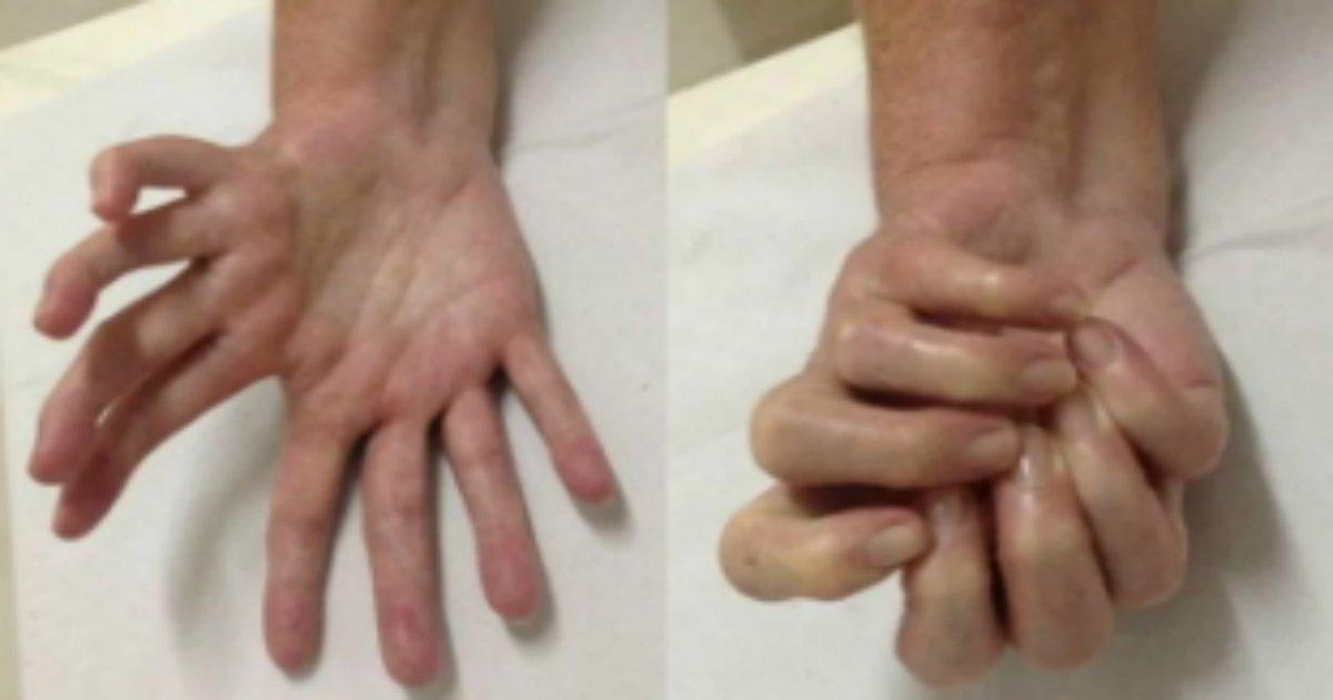 kibyou.png?resize=412,275 - 世界で100人もいないとされる奇病?8本の手を持つ男性現る