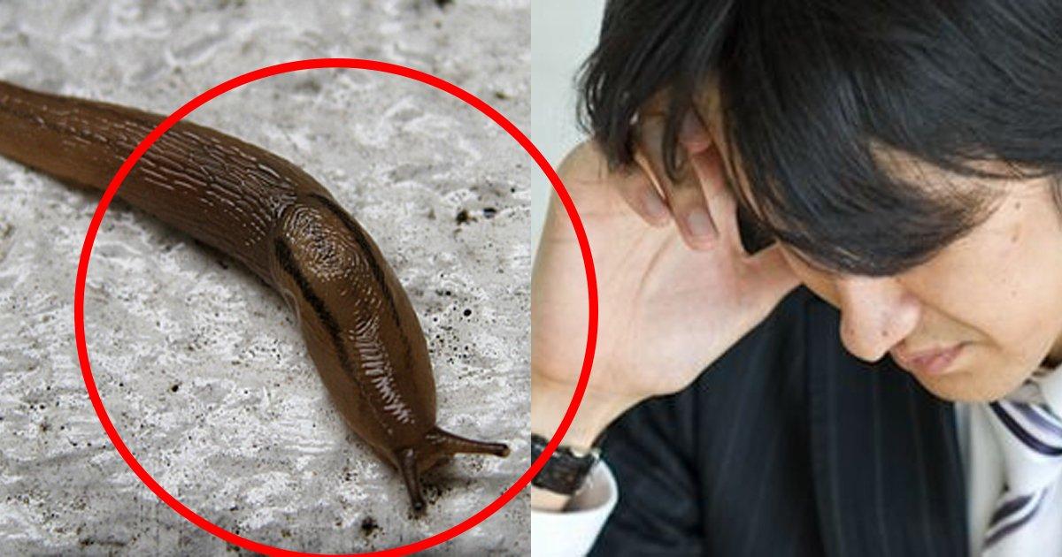snail.jpg?resize=1200,630 - ふざけてナメクジを食べた男性が、脳を侵す寄生虫に感染...
