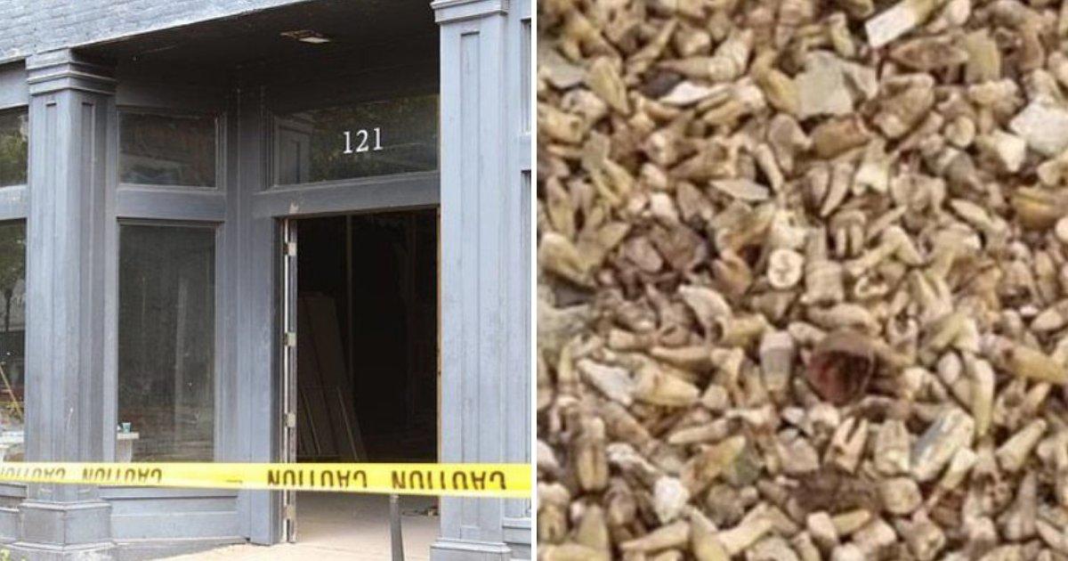 teeth5.png?resize=412,232 - Des ouvriers du bâtiment ont découvert 1 000 dents humaines cachées dans un mur