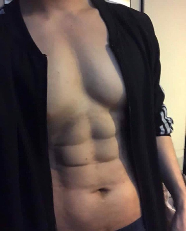 태국 남자 전신 근육 성형.jpg | 인스티즈