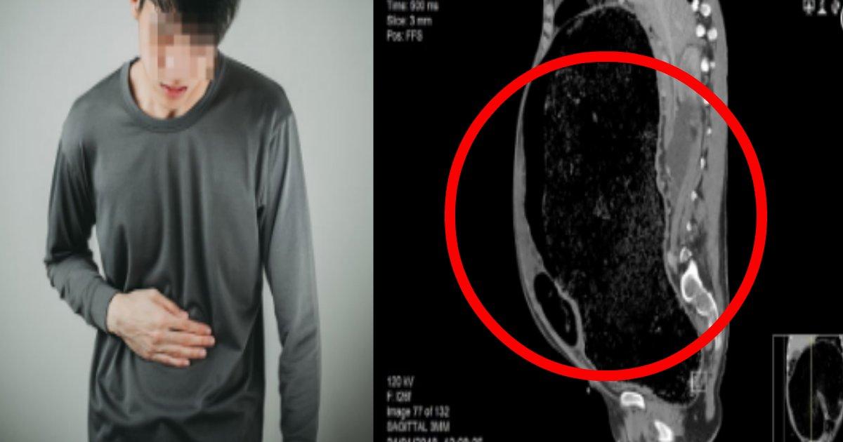 xray.png?resize=1200,630 - ひどい便秘で死にかけた男性のレントゲン写真がヤバい件