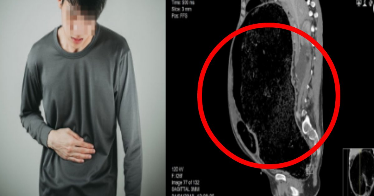 xray.png?resize=412,232 - ひどい便秘で死にかけた男性のレントゲン写真がヤバい件