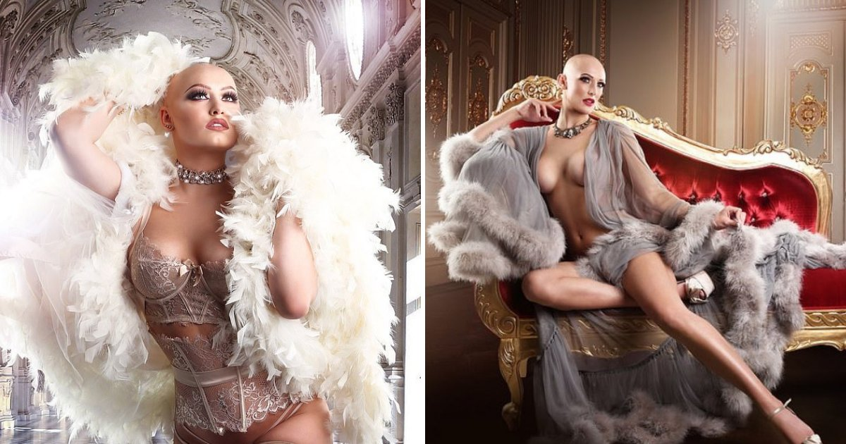 alopecia4.png?resize=1200,630 - Women With Alopecia Transformed Into Lingerie Models To Show That Bald Is Beautiful