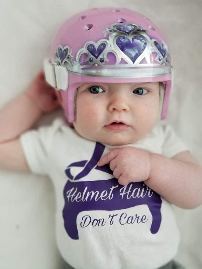 children son helmet support celebrity chrissy teigen 5c07d08c27516  700.jpg?resize=412,232 - Plagiocéphalie : des parents partagent des photos de leurs bébés portant un casque correcteur