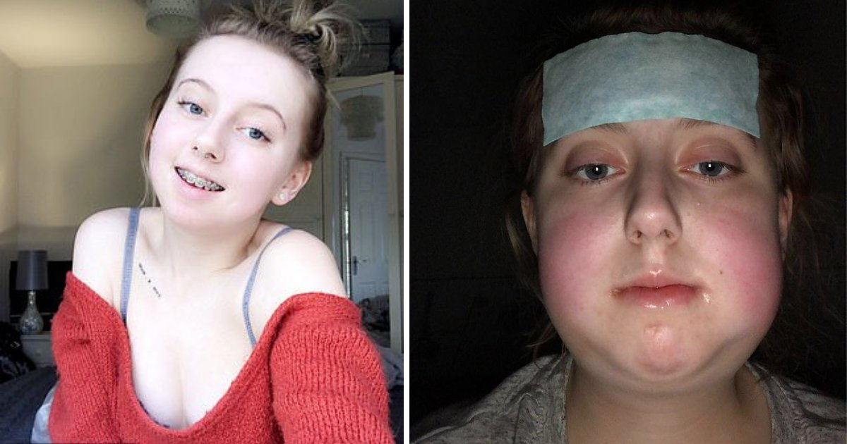 d1 11.png?resize=1200,630 - Teenager Undergoes Life-Changing Corrective Surgery After Suffering Years of Torment From Bullies