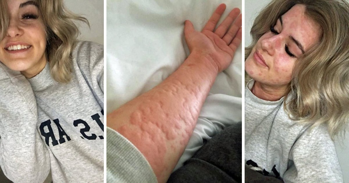 d3.png?resize=412,232 - This 21-Year-Old Woman is Allergic to Winter And This Is What happens to Her During Winters
