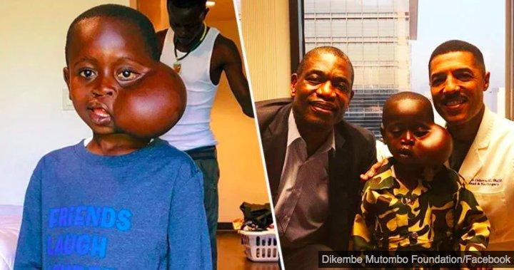 img 5c228503a0937.png?resize=1200,630 - Un enfant avec une tumeur au visage est décédé alors qu'ill allait subir une chirurgie aux Etats-Unis