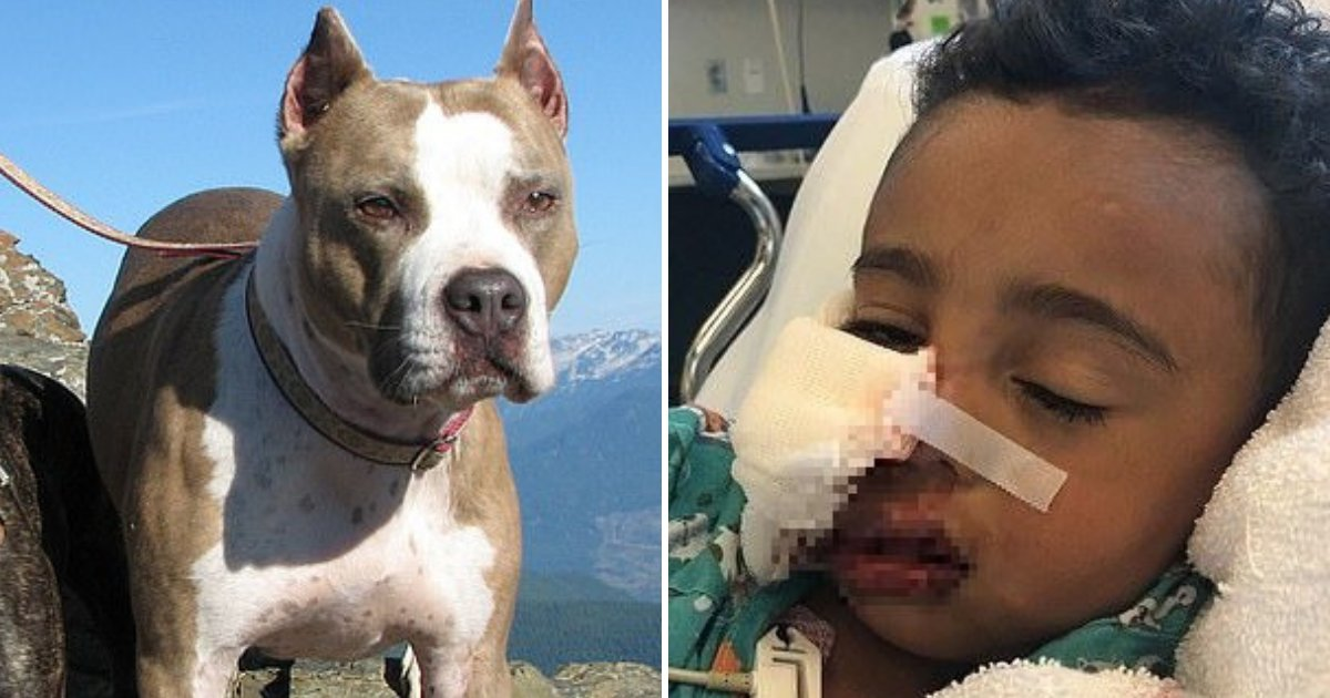 pitbull.png?resize=1200,630 - Pet Pit Bull Attacked 3-Year-Old Boy And Left Him With Facial Nerve Damage