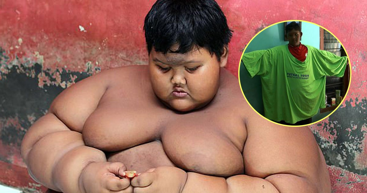 world fattest boy lost weight.jpg?resize=1200,630 - Remarkable Transformation Of The World's Fattest Boy As He Loses Nearly Half Of His Body Weight