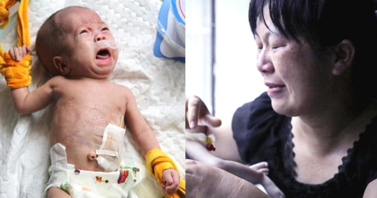 baby 7.jpg?resize=1200,630 - 食道閉塞で生まれた幼い息子の両手を縛りつけながら涙を流すお母さん