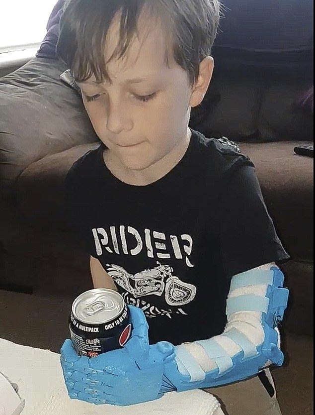 Bras bioniques avec une imprimante 3D