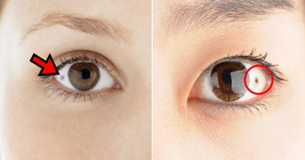 eye.png?resize=412,232 - 白目にできる「ほくろ」の正体は?もしかしてガンの予兆?