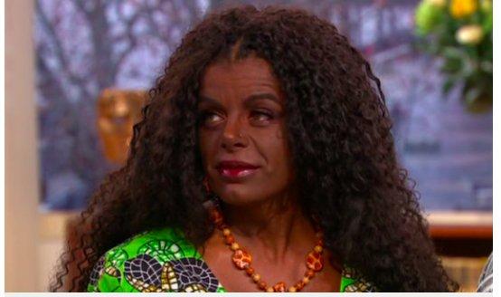 img 5c45c7a284ab6.png?resize=412,232 - Cette femme a changé sa couleur de peau en utilisant des injections de mélanine.