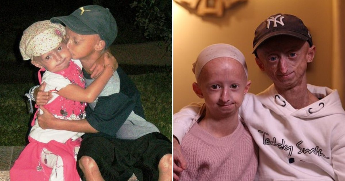 progeria7.png?resize=412,232 - Siblings Battle 1 In Eight Million Disease, They Are Already Experiencing Problems With Their Bones