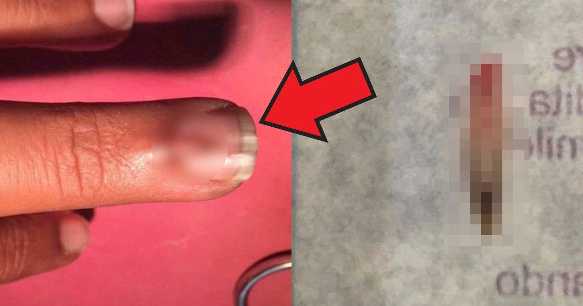 tsume.jpg?resize=412,232 - パキスタン28歳の男性の中指から生えてきた爪?!【衝撃】
