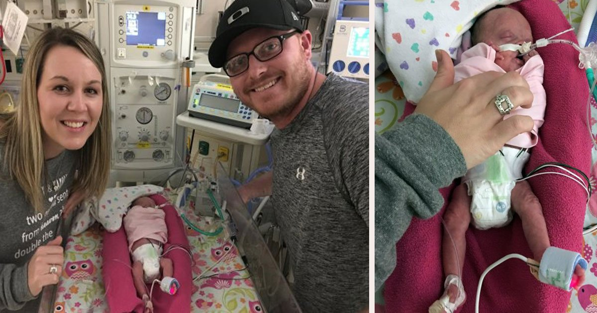 untitled 1 71.jpg?resize=412,275 - Babies Broke Hospital's Record For Most Premature Twins Ever To Survive