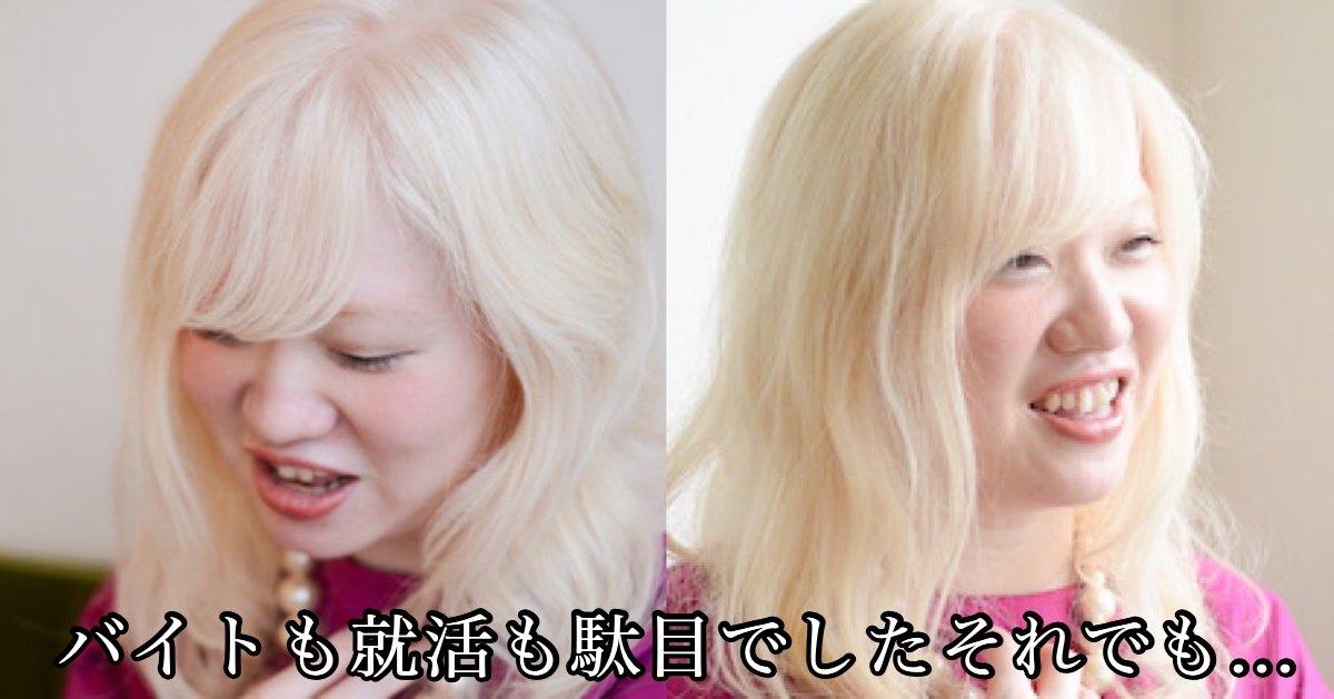 img 2293.jpg?resize=1200,630 - 「私は白い髪を黒く染めない」バイト落ち続けたアルビノの女性の意思と決意とは