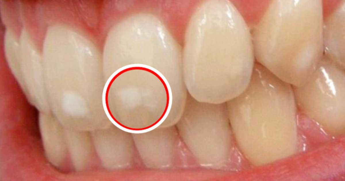img 59a85d9cf25e3.png?resize=1200,630 - なんとなく目障りの歯にできる白い斑点、なぜできるのか?