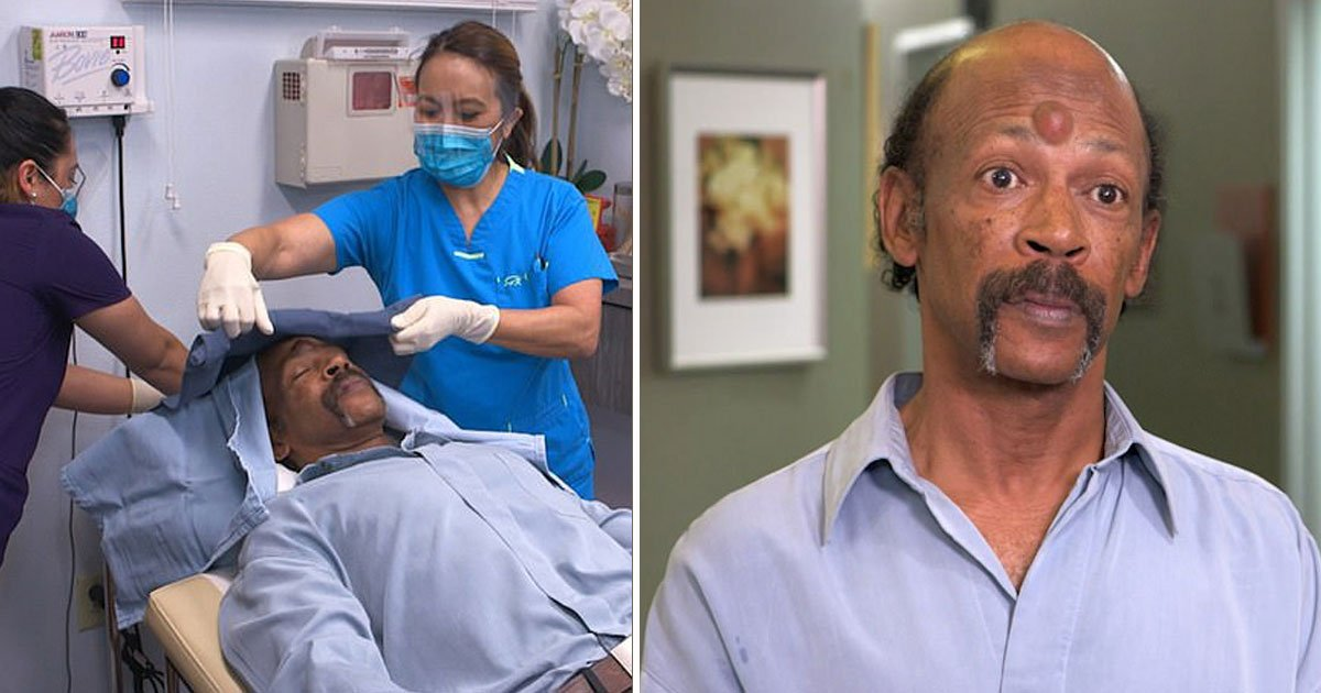 man removes third eye.jpg?resize=412,232 - Man Gets His 'Third Eye' Removed With The Help Of Experts