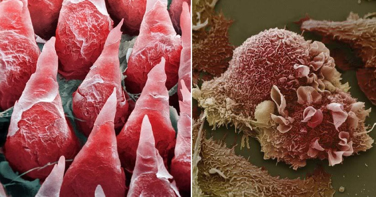 organ micro.png?resize=1200,630 - How Human Organs Look Like Under A Microscope
