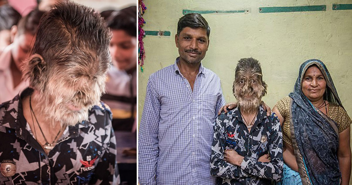 real life werewolf boy india.jpg?resize=412,232 - 13-Year-Old Boy Who Suffers From 'Werewolf Syndrome' Opens Up About His Struggles