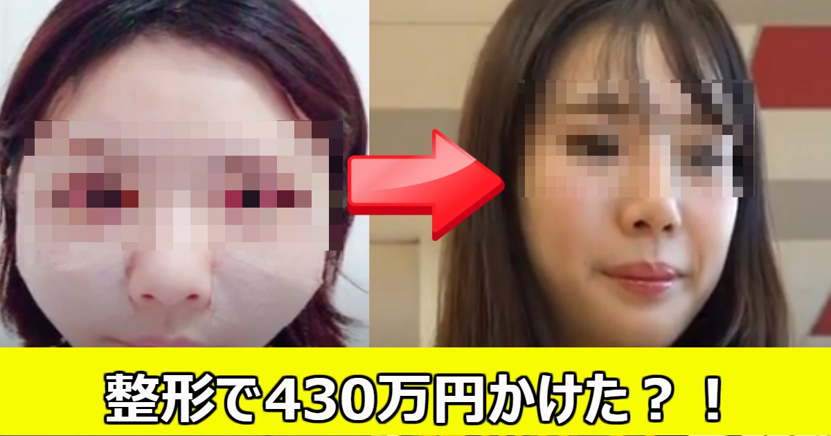 seikei.png?resize=1200,630 - 430万かけて整形した?24歳女性の現在の思いとは?