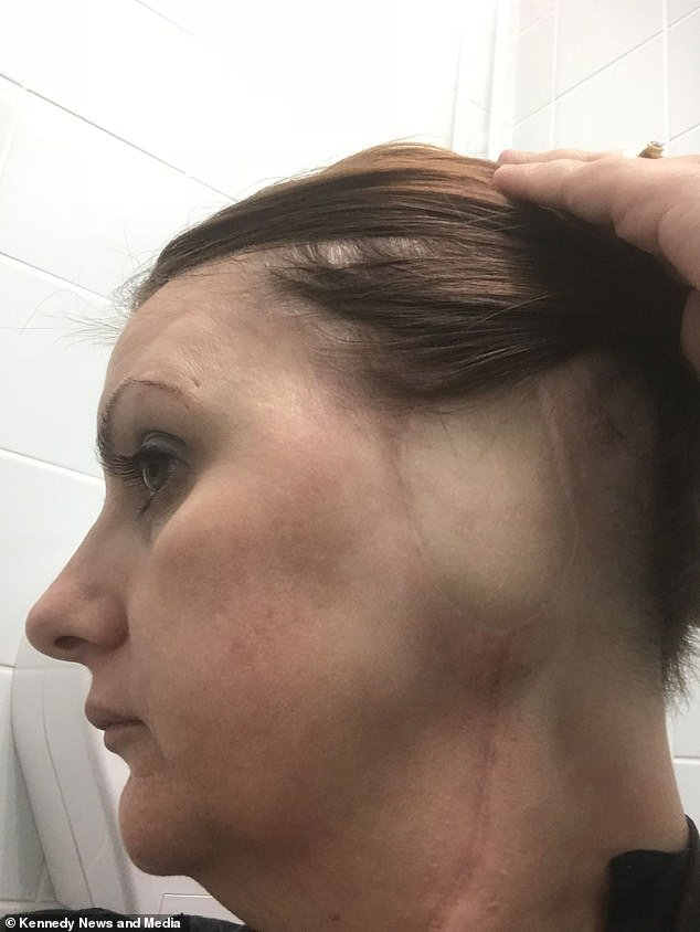 Andrea Smith, 43, from Winstanley, Greater Manchester had her ear amputated due to skin cancer which was misdiagnosed as a wart for five years