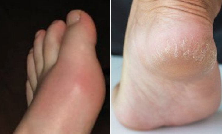 20180211155719 0.png?resize=300,169 - すぐ病院へ行かなければならない足の健康状態10種