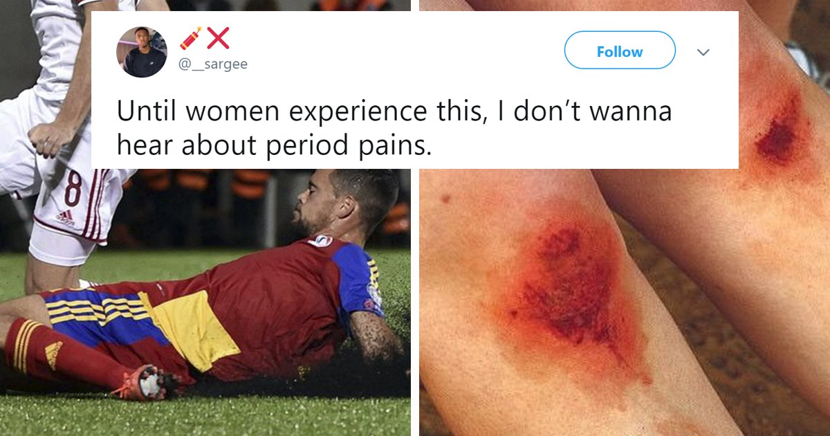 a 3.png?resize=412,232 - Man Gets Slammed On Twitter For Claiming 'Skinned Knees' Hurt More Than 'Period Cramps'