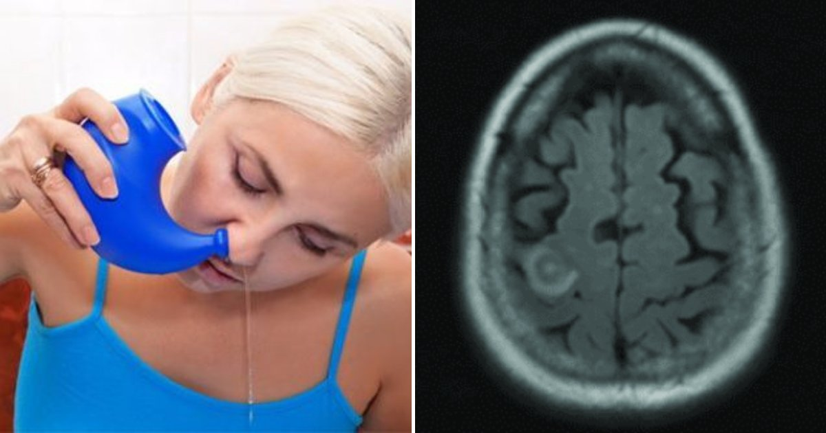 brain3.png?resize=1200,630 - Doctors Issue Warning After Woman Dies From Using Tap Water To Clear Sinuses