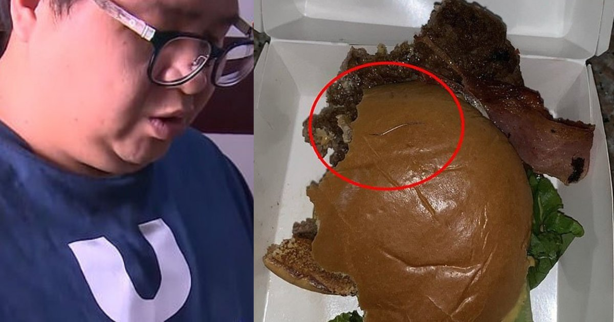 d3 13.png?resize=1200,630 - Man's tongue pierced by 'needle' after biting into McDonald's Beefburger