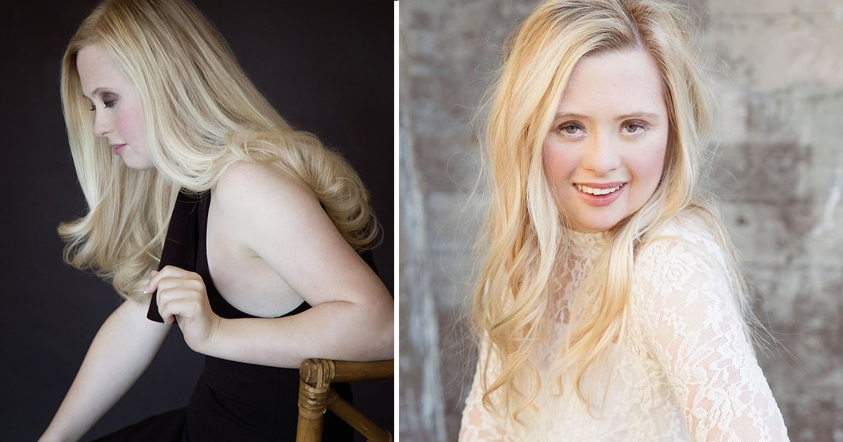 Model with Down syndrome Madeline Stuart lands major