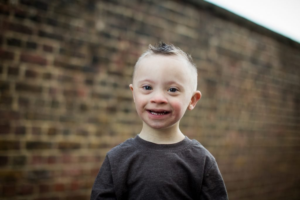 Image result for riley smiley down syndrome