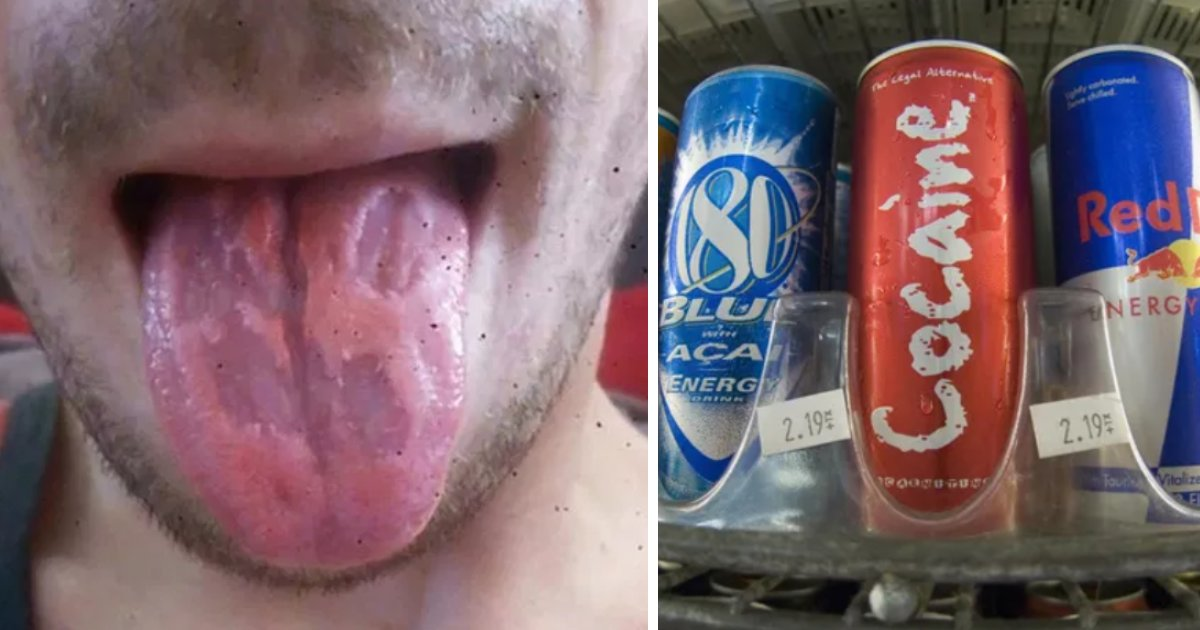 featured image 70.png?resize=1200,630 - Man's Tongue 'Eaten Away' After He Became Addicted To Energy Drinks