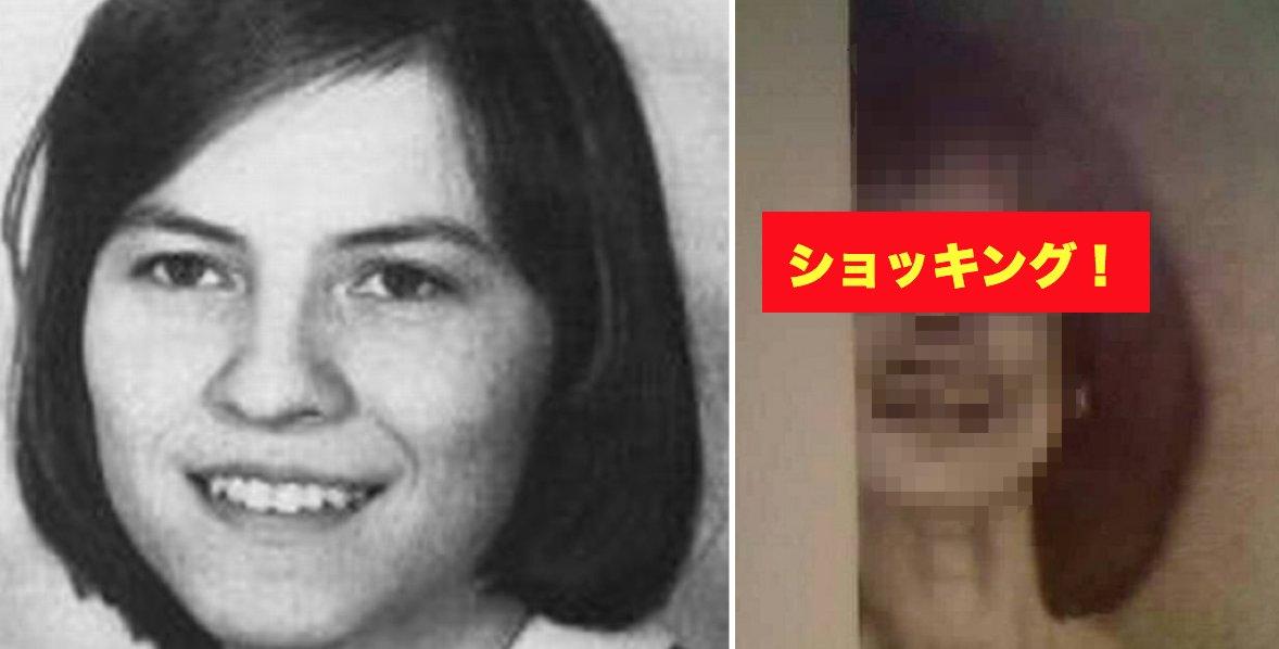 img 5a17dba070f05.png?resize=412,232 - 「67時間」あくま払いを受けた女性の顔はこう変わった