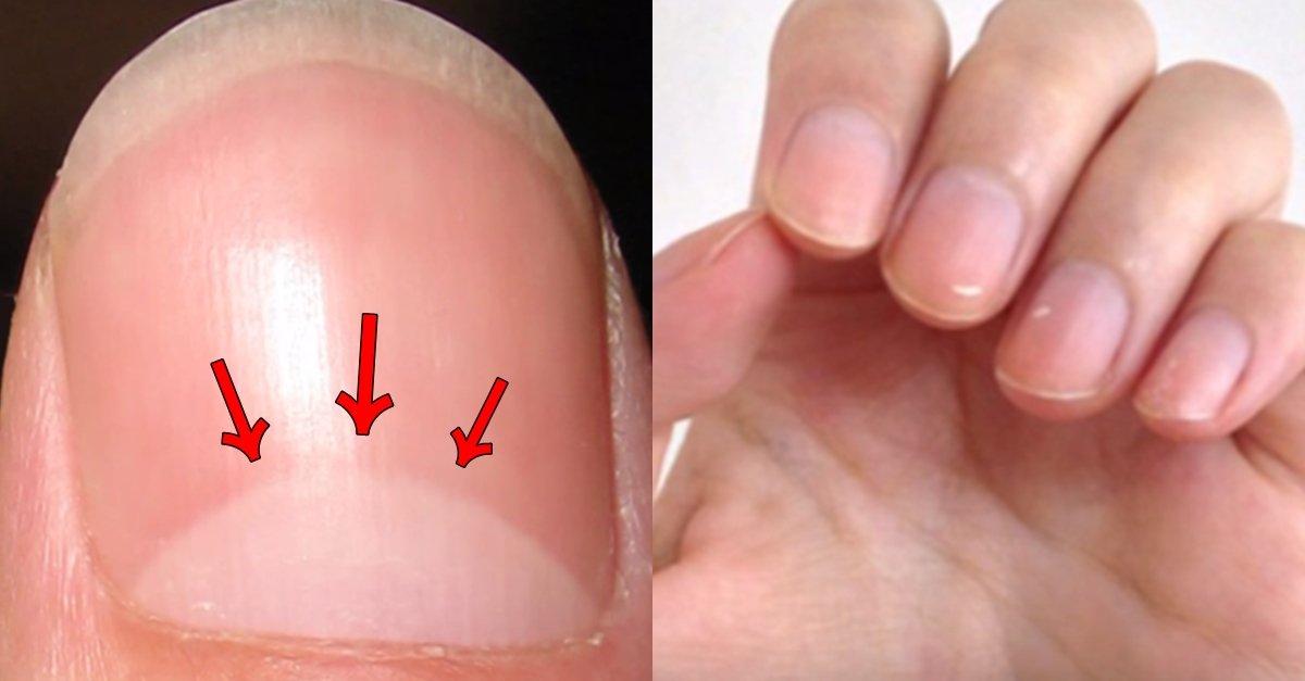 img 5a66a5f81ca95.png?resize=1200,630 - あなたの健康状態、爪の根元だけを見ても分かる?