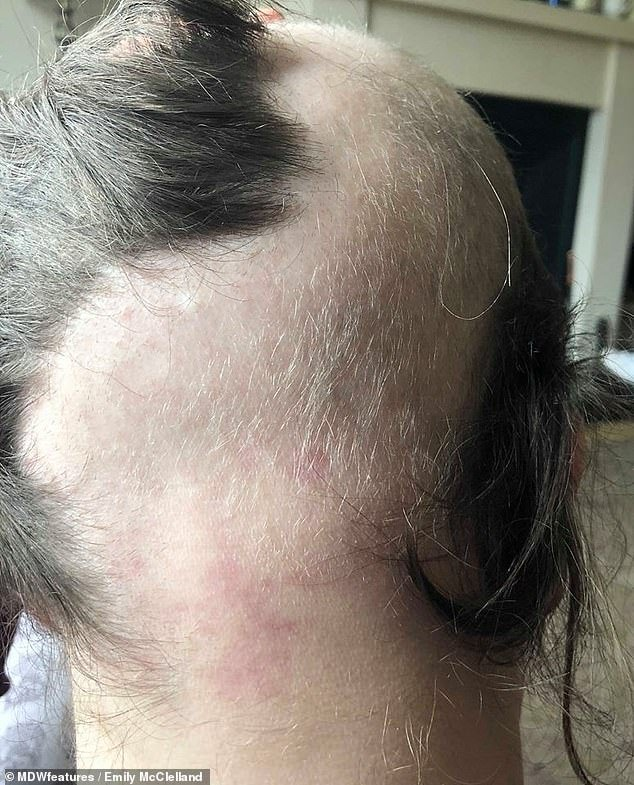 The 21-year-old was initially told by a hairdresser that she had a small bald patch at the back of her head. They became larger (pictured) until she shaved her head completely
