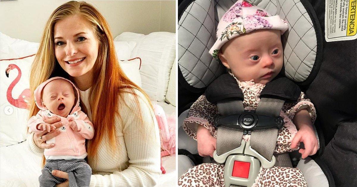 s3 4.png?resize=300,169 - Une mère a raconté à quel point elle était dévastée quand elle a appris que sa fille était atteinte du syndrome de Down